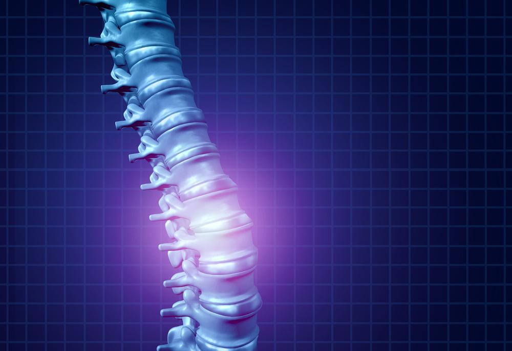 What is Spinal Cord Stimulation?