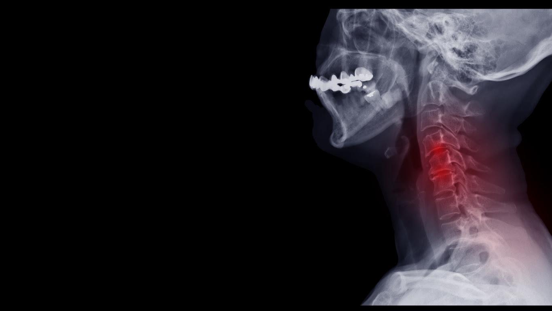 xray spine cervical spondylosis