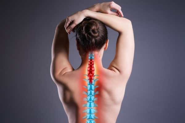 woman with cervical disc disease